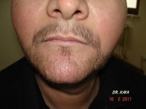 sakal ekimi sonra