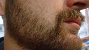 sakal ekiminden 1 yıl sonra