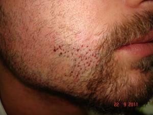 sakal ekiminden hemen sonra